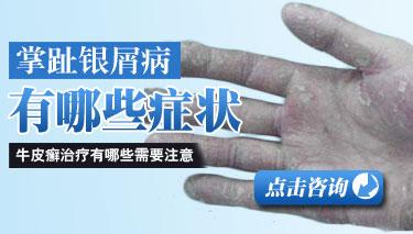 手部银屑病患者要怎么护理