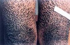 红皮型银屑病是因为什么原因引起的