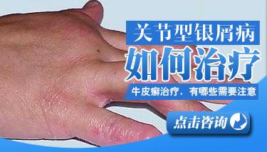 银屑病患者关节疼怎么办