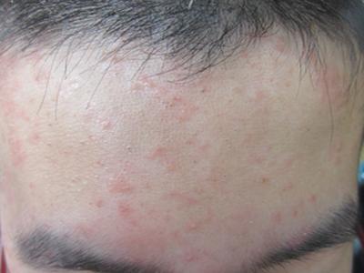 如何诊断红斑是牛皮癣呢